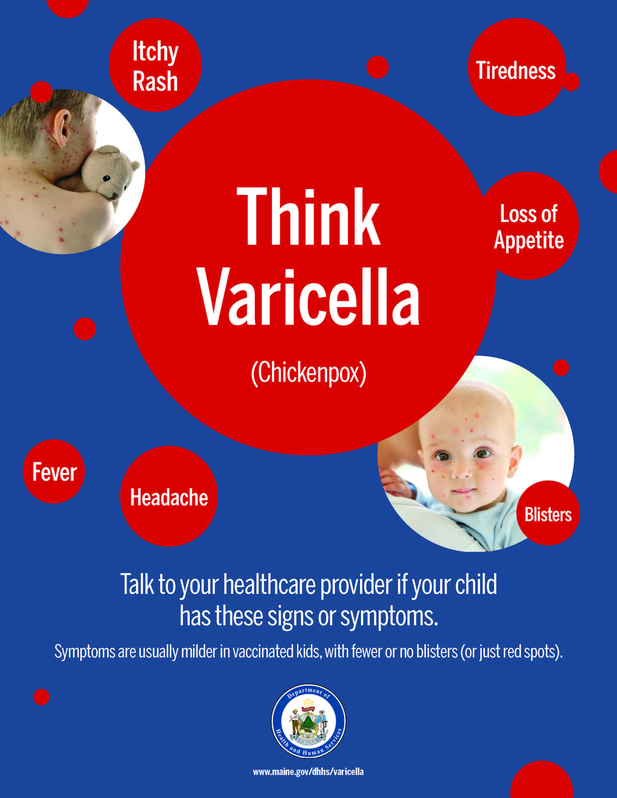 Think Varicella - Standard