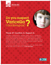 Do you Suspect Varicella